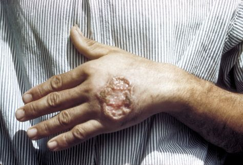 1280px-Skin_ulcer_due_to_leishmaniasis,_hand_of_Central_American_adult_3MG0037_lores